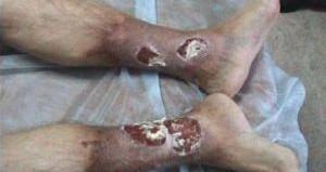 язвы на ногах