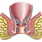 Народные методы лечения трофической язвы: рецепты и советы
