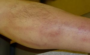 Лечение трофической язвы на ноге при варикозе