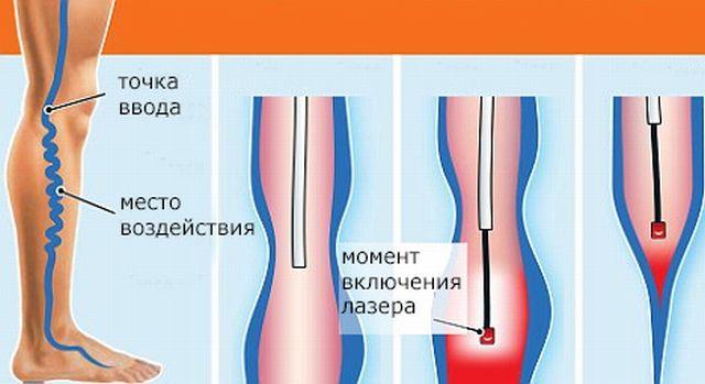 Профилактика варикозного расширения вен нижних конечностей