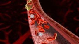 тромб в артериях