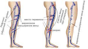 Отличие артерии от вены