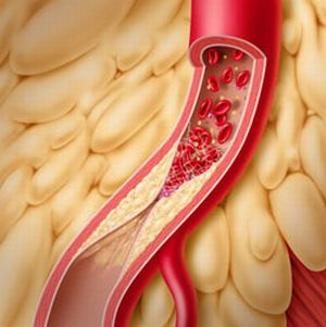 Тромбоз мезентериальных сосудов - причины, диагностика, клиника и лечение