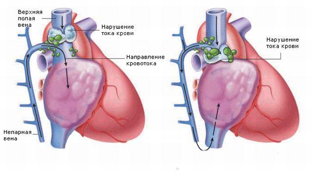 анатомия вены