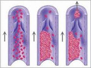 Наследственная тромбофилия и беременность