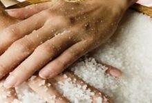 соль при варикозе