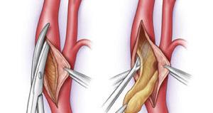 тромбэктомия геморроидального узла отзывы
