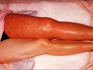 Тромбоза бедренной вены