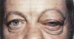 тромбоз синуса