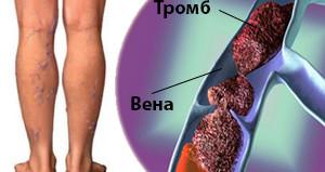 тромбоз подколенной вены