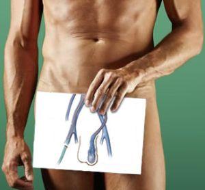 Операция мармара при варикоцеле: техника проведения и осложнения
