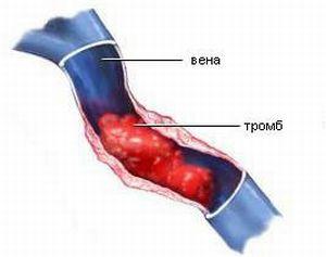 Посттромбофлебитический синдром (ПТФС): патогенез и лечение