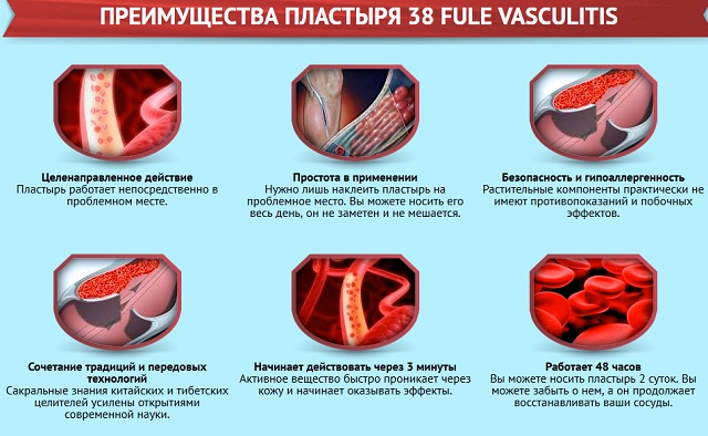 плюсы 38 fule vasculitis