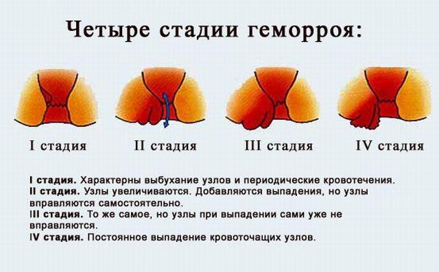 геморрой 3 степени фото