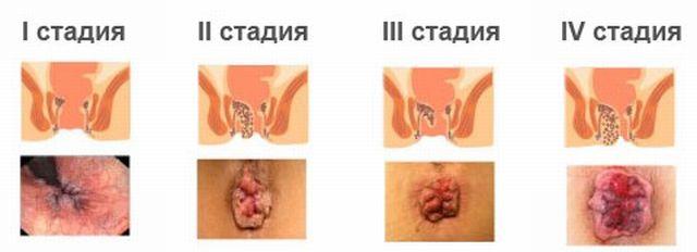 Зуд у женщин - viferon.su