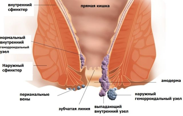 операция по удалению геморроя в рязани
