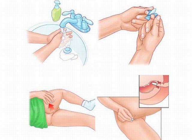 Гепатит от геморроя