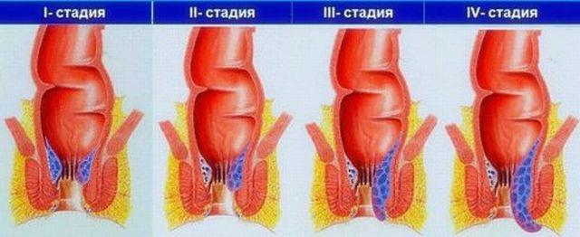 геморрой фото начальная стадия как лечить