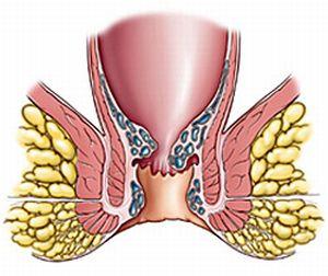 хронический внутренний геморрой 2 степени лечение