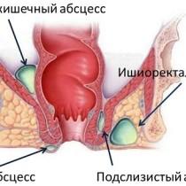 острый парапроктит и абцессы