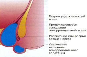выпадение геморроидальных узлов фото