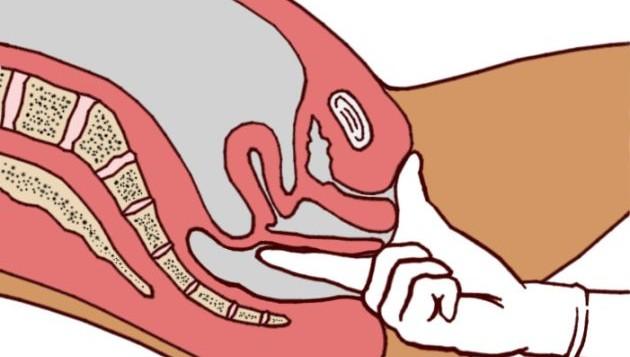 пальцевое ректальное исследование прямой кишки