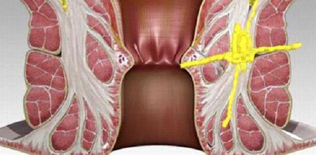 Осложнения геморроя после операции и лечения