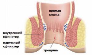 анальная трещина прямой кишки