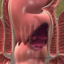 выпадение геморроидальных узлов