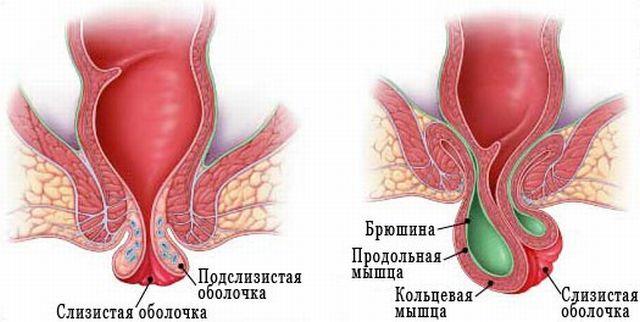 Геморрой или полипы как отличить одну болезнь от другой
