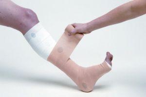 бинтование ног при варикозе