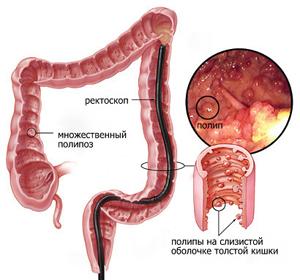 диагностика полипов