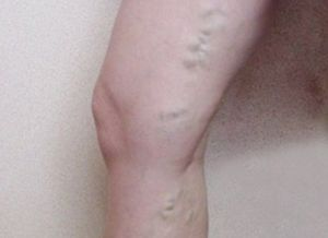 варикозный тромбофлебит