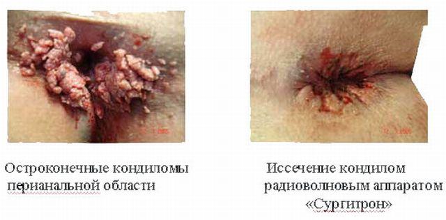 анальные кондиломы до и после лечения