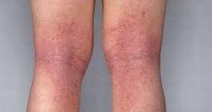 Пятна на ногах варикозные