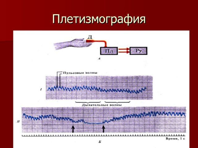Плетизмография результаты