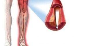 кровоток в ногах