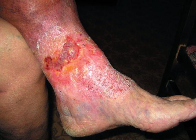 варикозная экзема на ногах