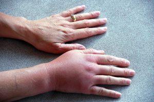 тромбоз рук