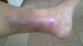 трофическая язва на ногах