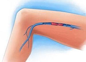 тромбозы нижних конечностей