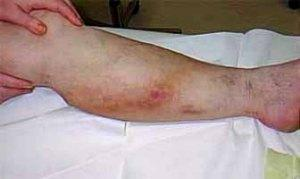 Самые читаемые статьи: Геморрагический васкулит лечение у детей