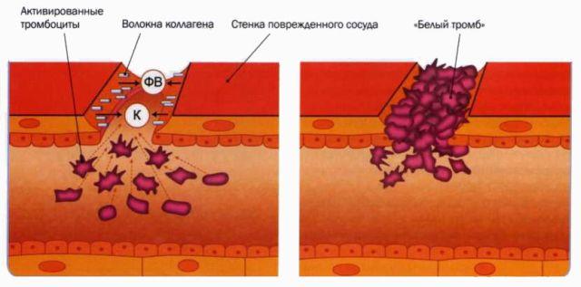 белые тромбы