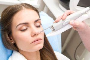Лазерное лечение лица