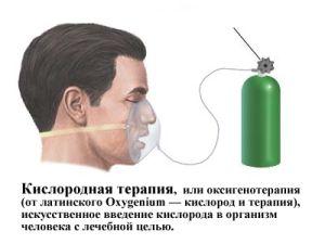 Оксигенотерапия