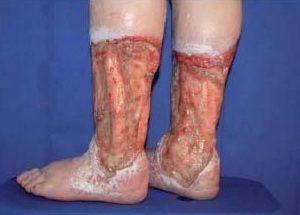 посттромботическая болезнь