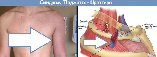 Как развивается тромбоз вен плеча