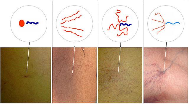 Вены на ногах лечение лазером в новосибирске