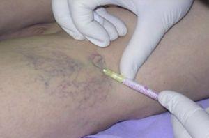 Почему болит вена после взятия крови