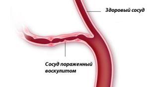 сосуд пораженный васкулитом